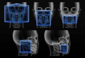 Scanora 3D FOVs