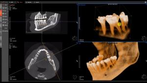 CBCT scan